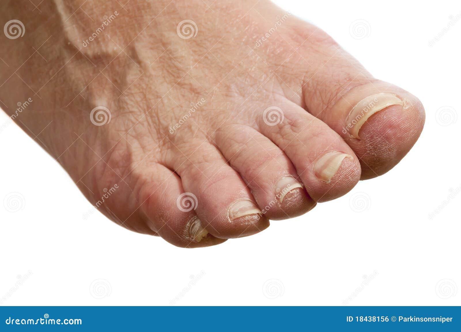 is peeling skin bad