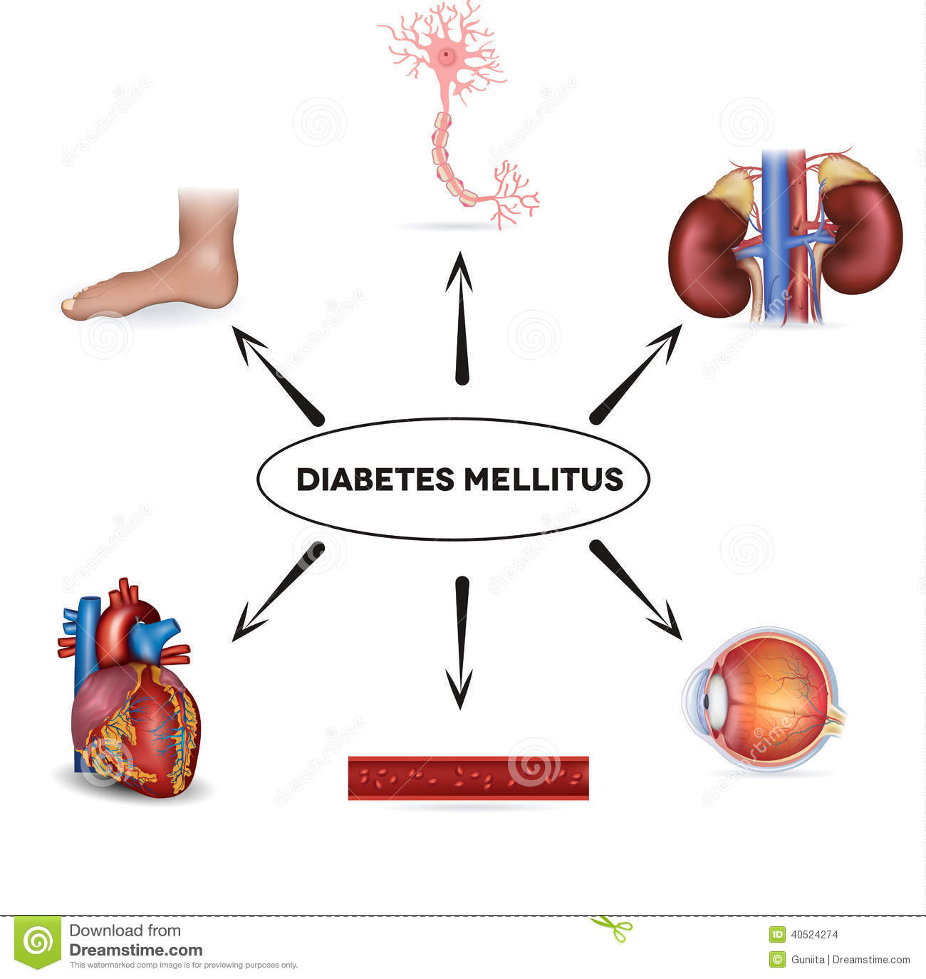 Diabetic Sites: Diabetes Mellitus Stock Vector