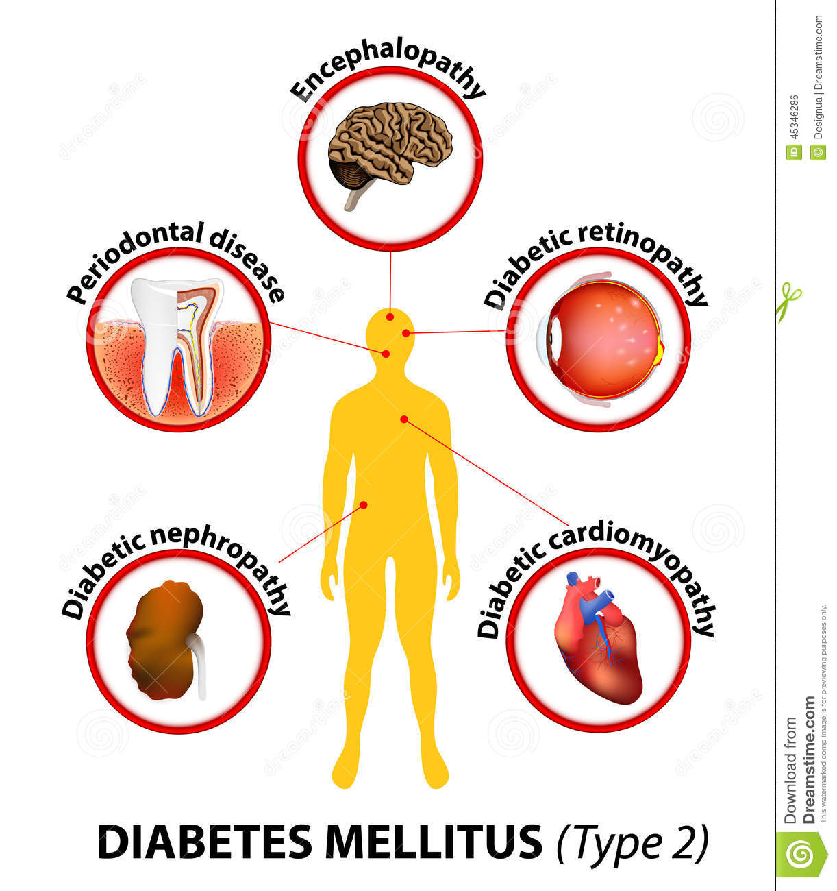dieet diabetes mellitus type 2