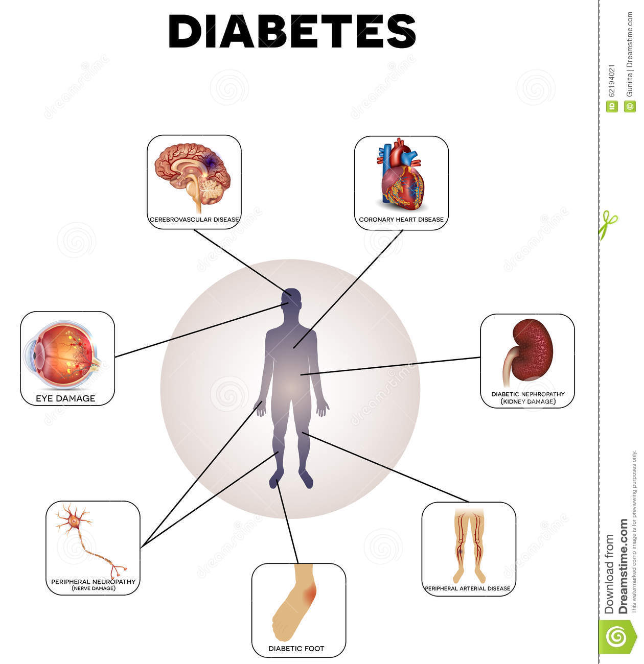 Type 2 diabetes mellitus is also known as 47