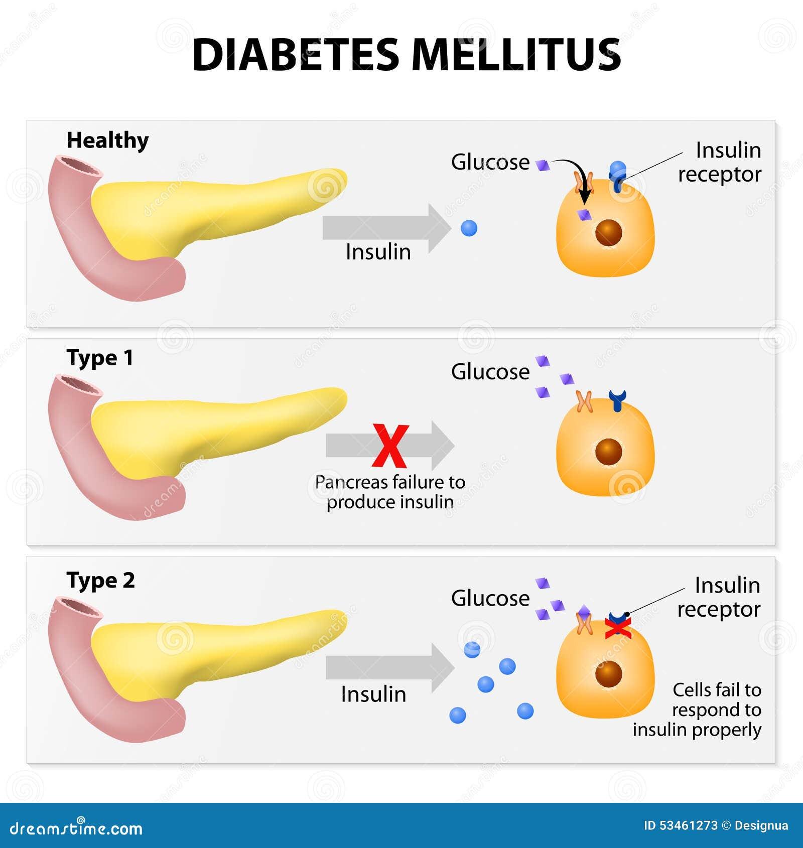 of diabetes mellitus. Either the pancreas not producing enough insulin ...