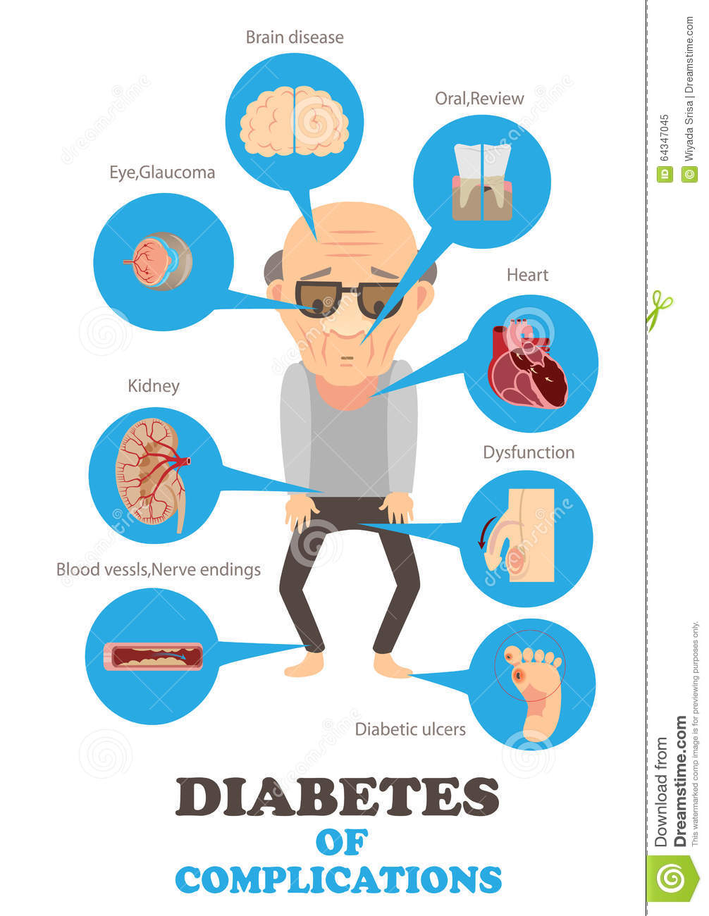 Stock Illustration Diabetes Type Complications Info Graphics Illustrat...