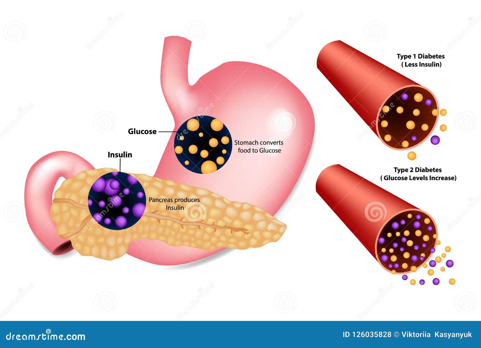 sel beta pancreas insulina diabetes