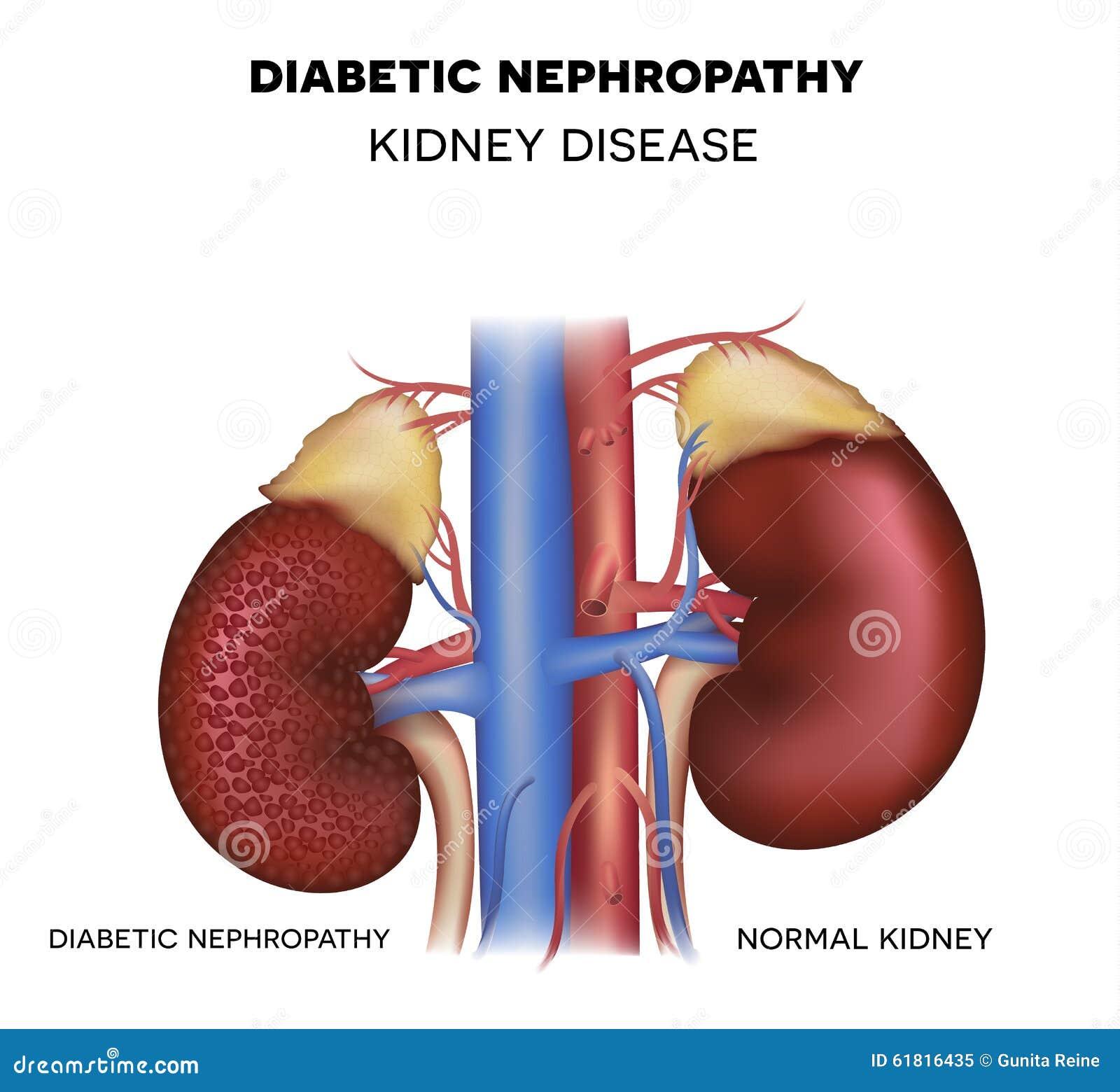 Diabetic Nephropathy Kidney Disease