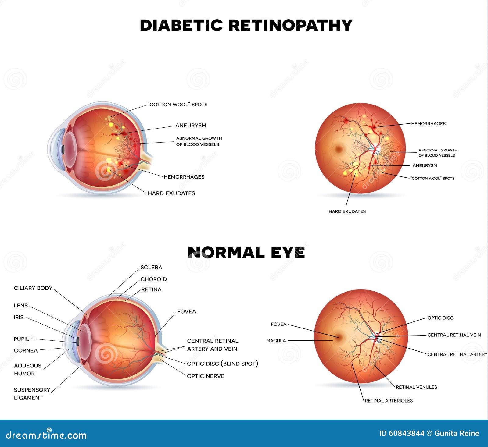 Diabetic retinopathy stock vector. Illustration of care - 60843844