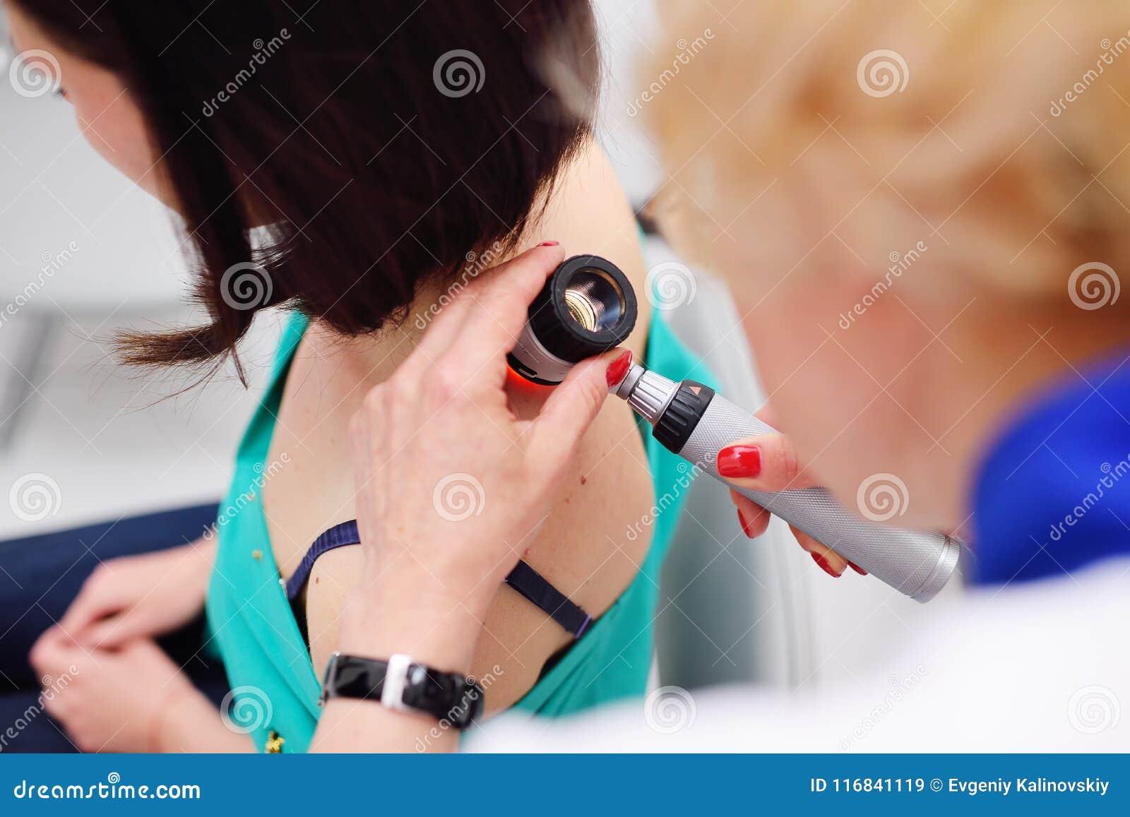 Diagnoinspectionsis da melanoma O doutor examina a toupeira paciente do ` s