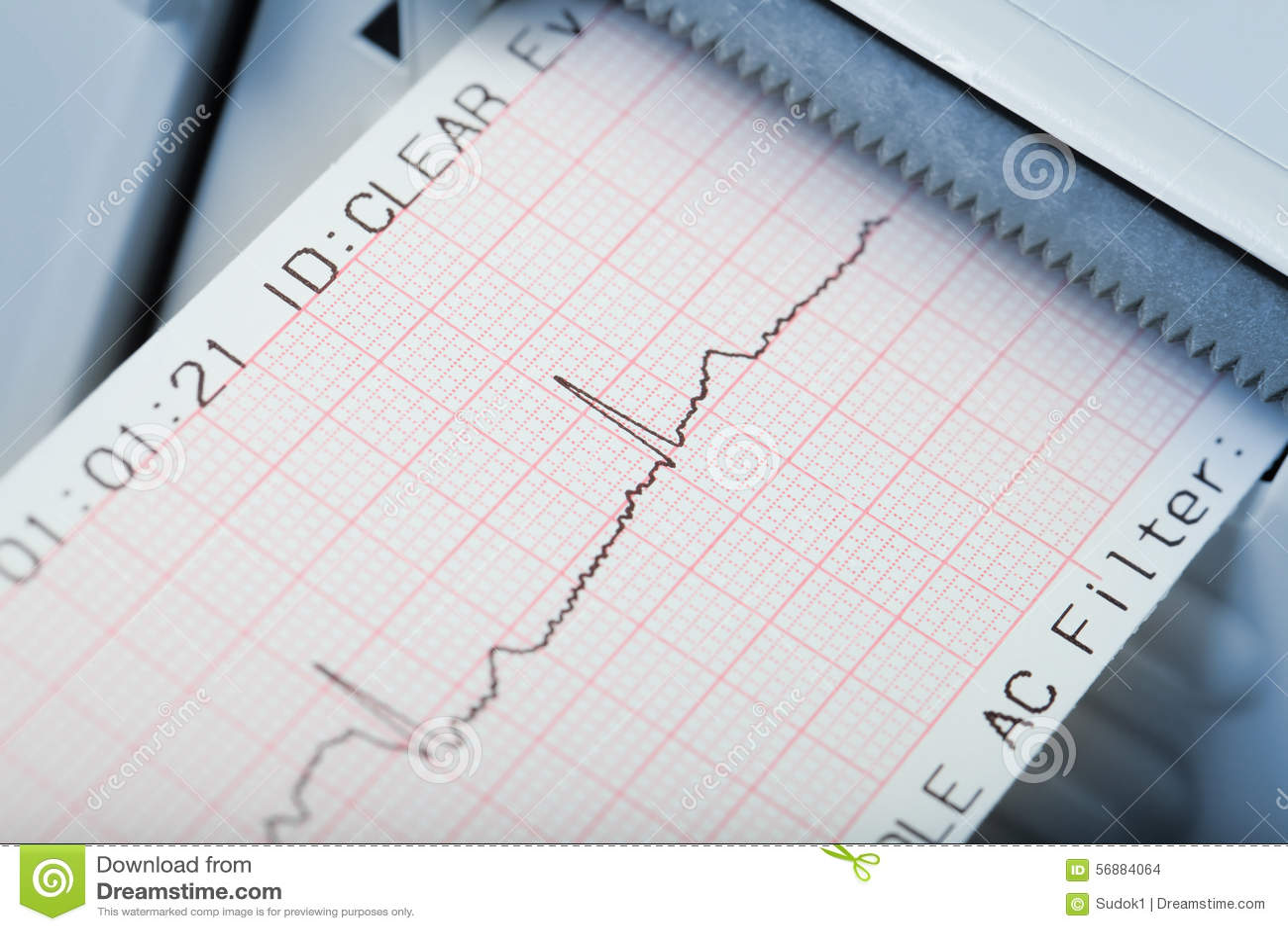 Diagnosi rapida dei disordini cardiaci di ritmo Macro foto