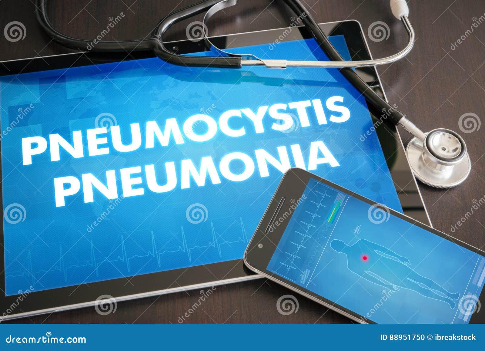 Diagnosis de la pulmonía de Pneumocystis (enfermedad infecciosa) médica