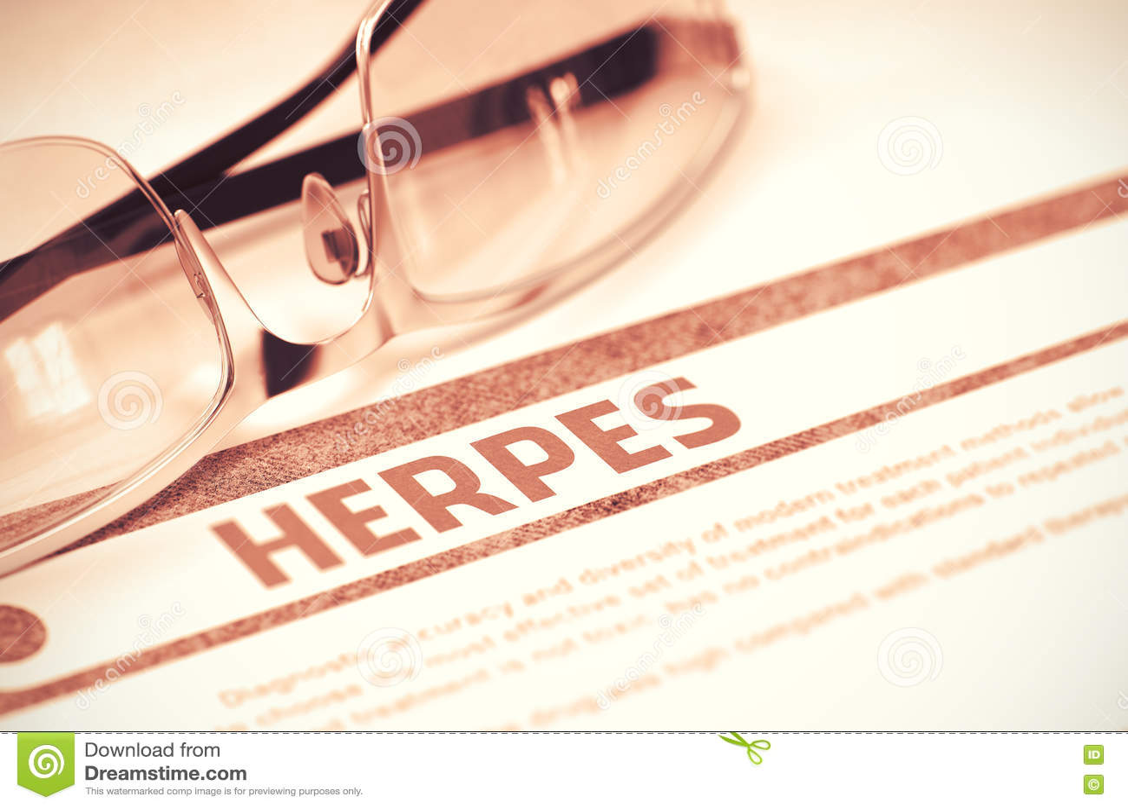 Structure Herpes Virus For Basic Medical Stock Vector ...  Herpes Medical Illustration