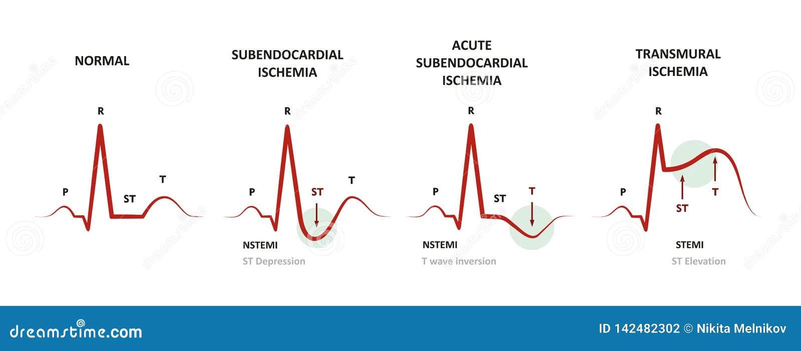 Diagnosis Of Myocardial Ischemia Stock Vector ...