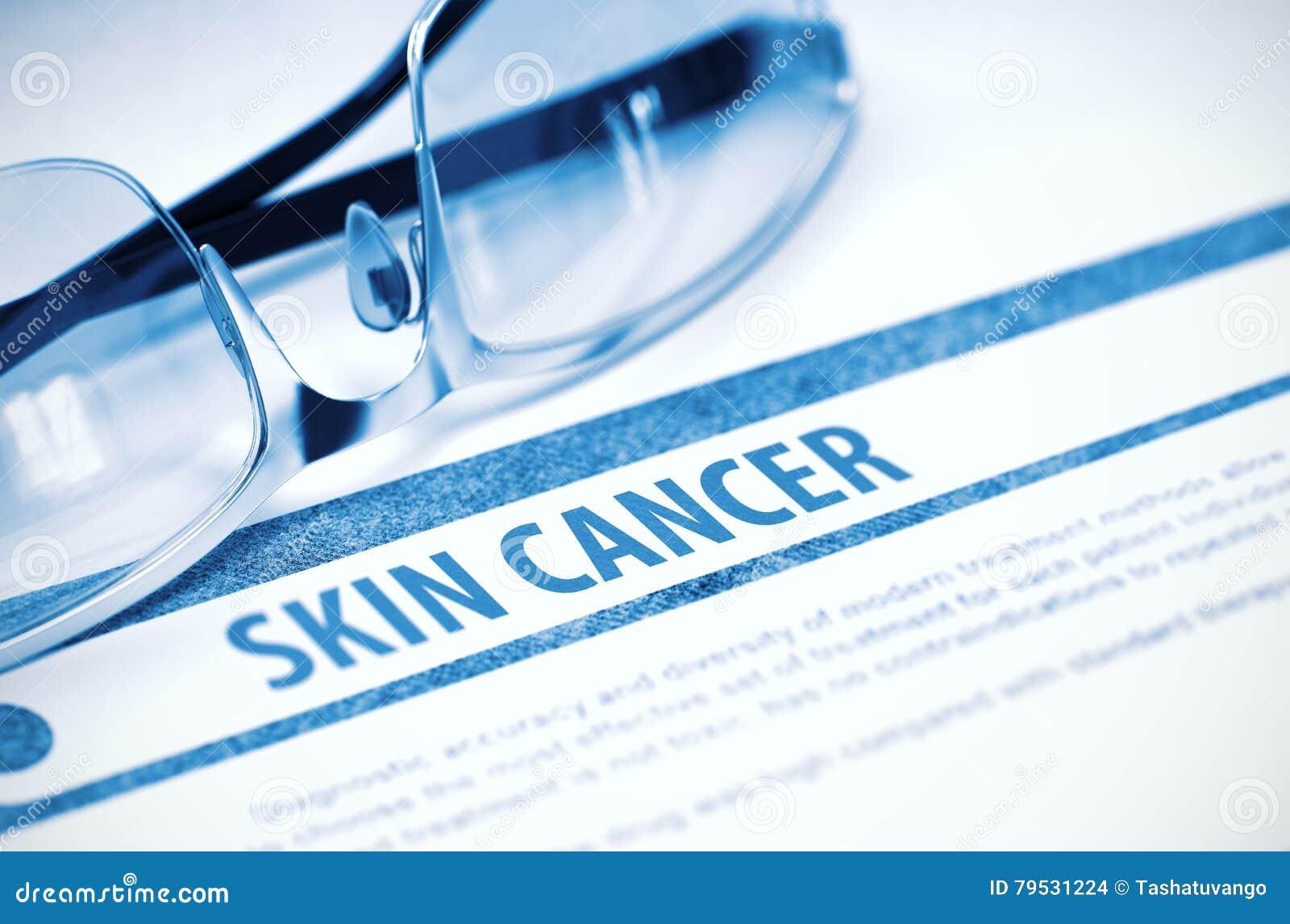 Diagnosis Skin Cancer Medicine Concept 3d Illustration Stock Photo Image Of Rehabilitation Metastasis 79531224