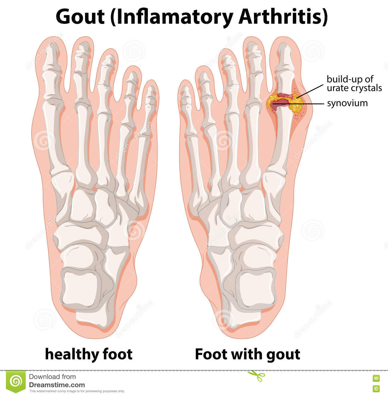 Diagram Explanation Of Gout In Human Foot Stock Vector ...