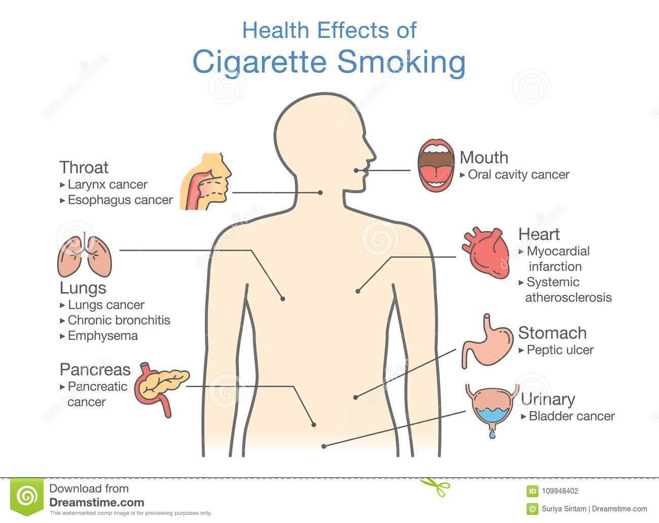 Diagram About Health Effect Of Cigarette Smoking  Stock