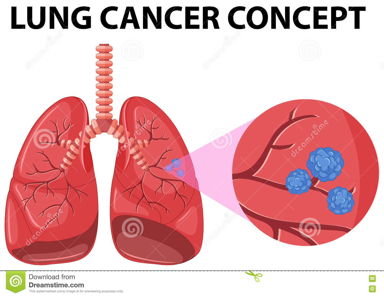 Image Result For U Of L Lung Cancer