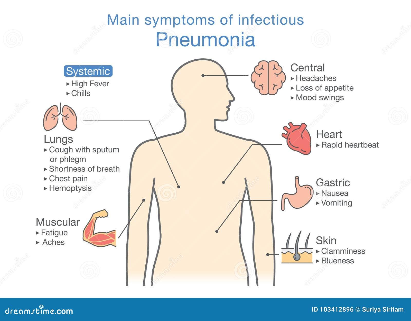 diagram of main symptoms of infectious pneumonia stock vector