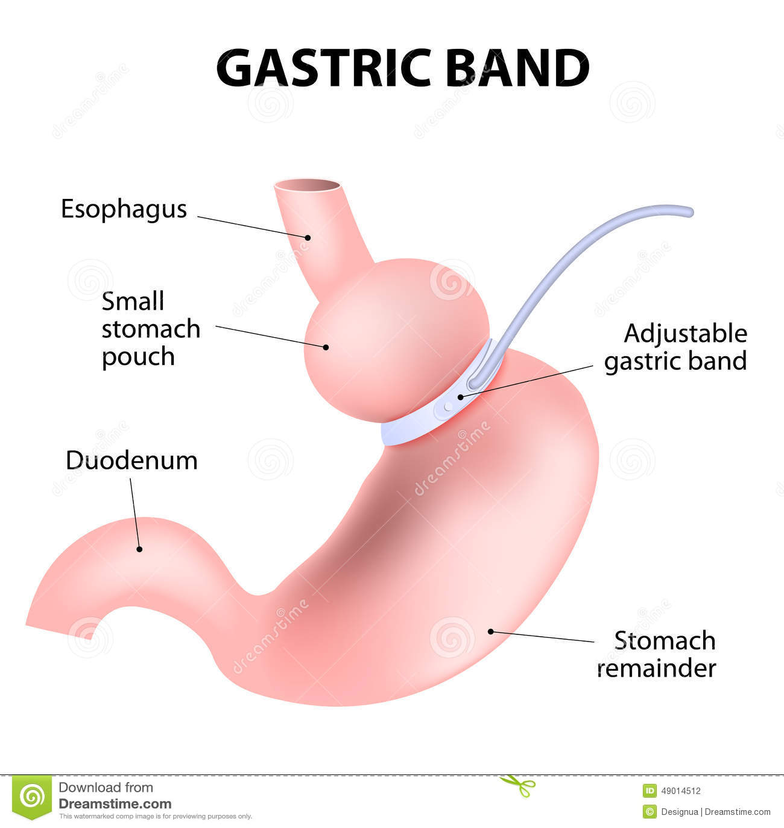 Diagram nastawczy żołądkowy zespół