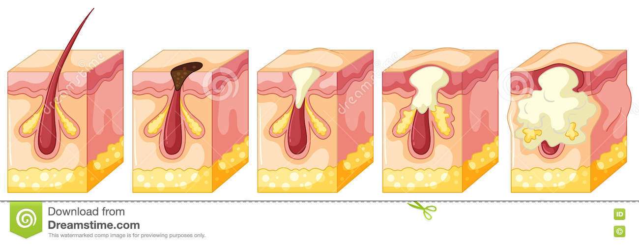 diagram of pimple on human skin
