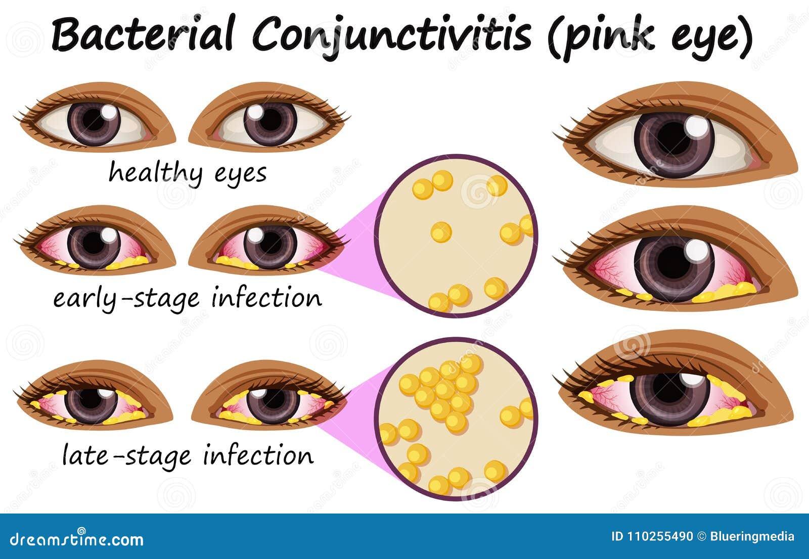 Diagram Showing Bacterial Conjunctivitis In Human Eye Stock Vector Image Download Preview
