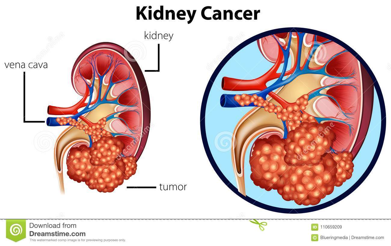 Diagram showing kidney cancer
