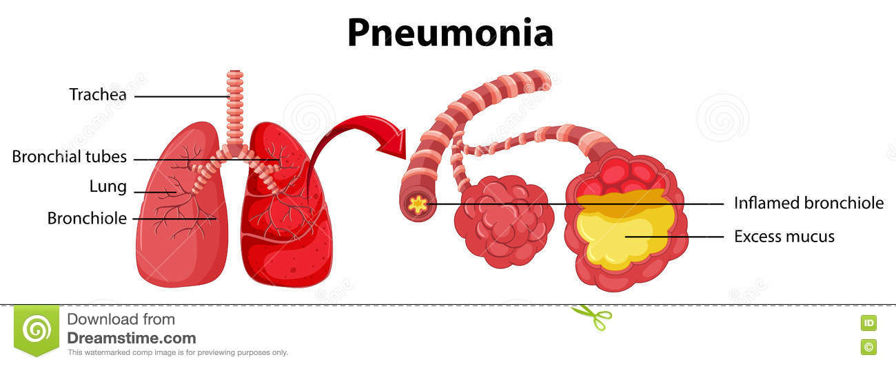 human body health disease pneumonia essay Pneumonia can be a serious threat to our health although pneumonia is a special  prevention of ventilator-associated pneumonia  the human body to.