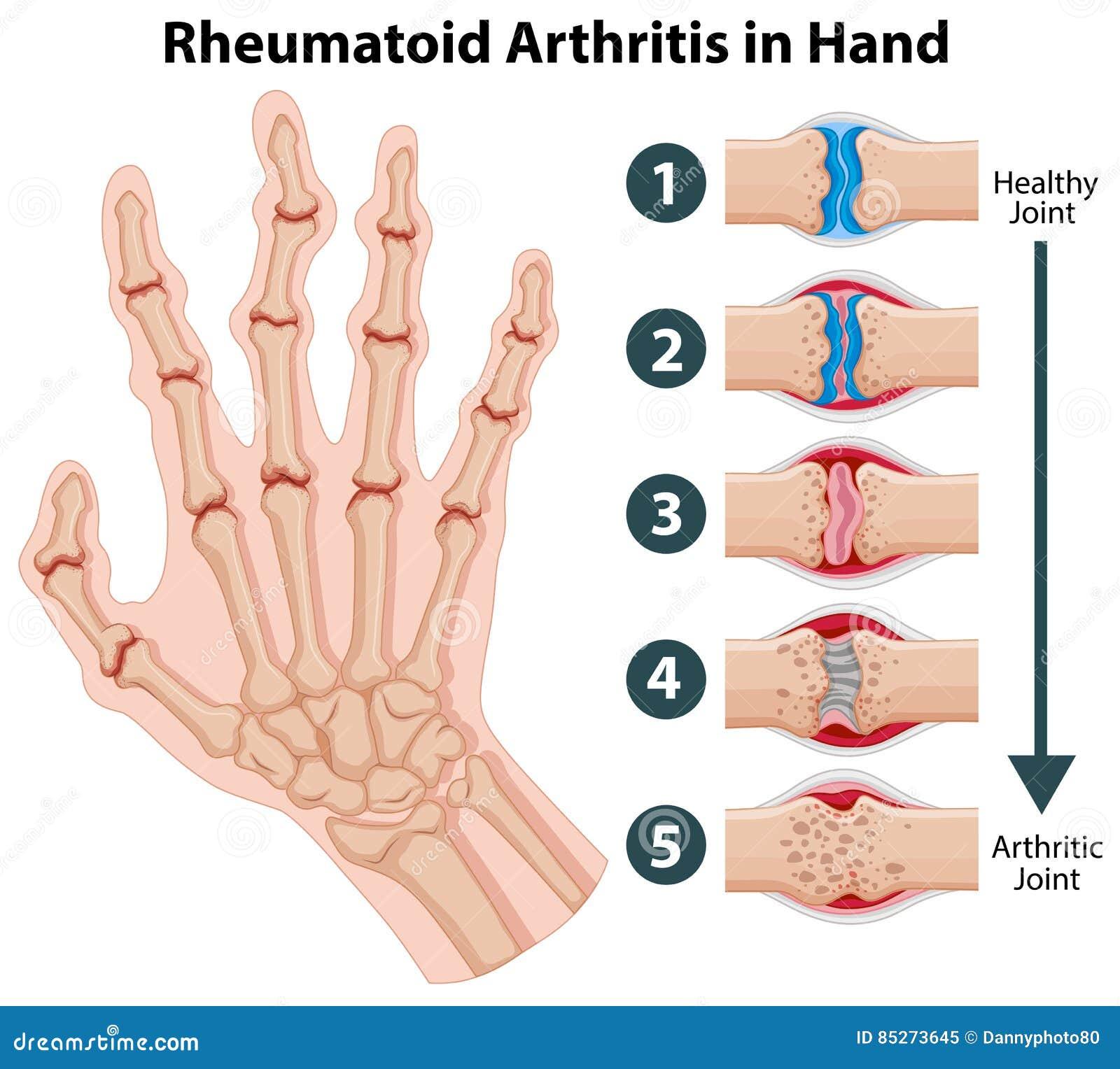 Diagram showing rheumatoid arthriitis in hand