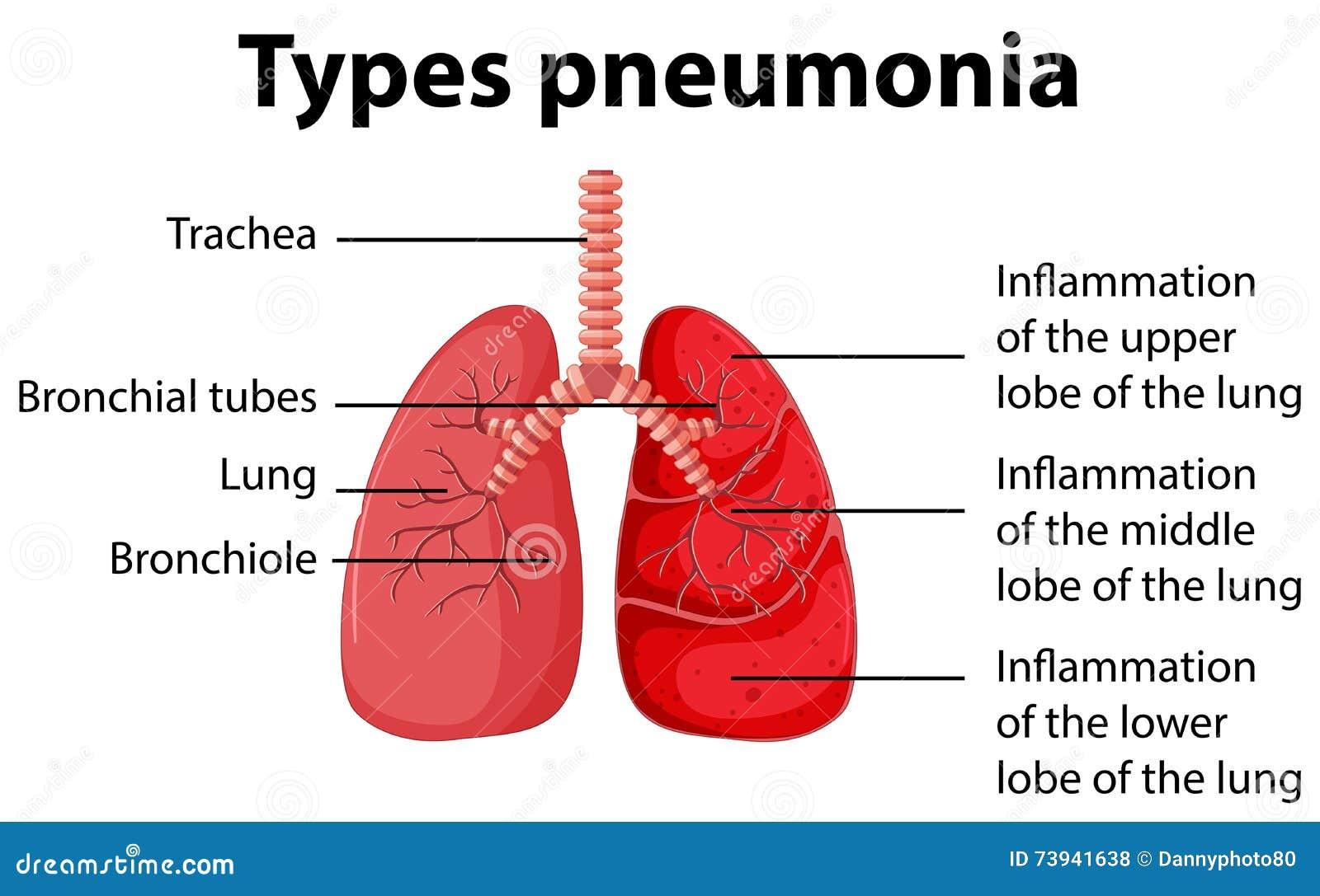 simple pneumonia diagram wiring diagrams structure Simple COPD Diagram