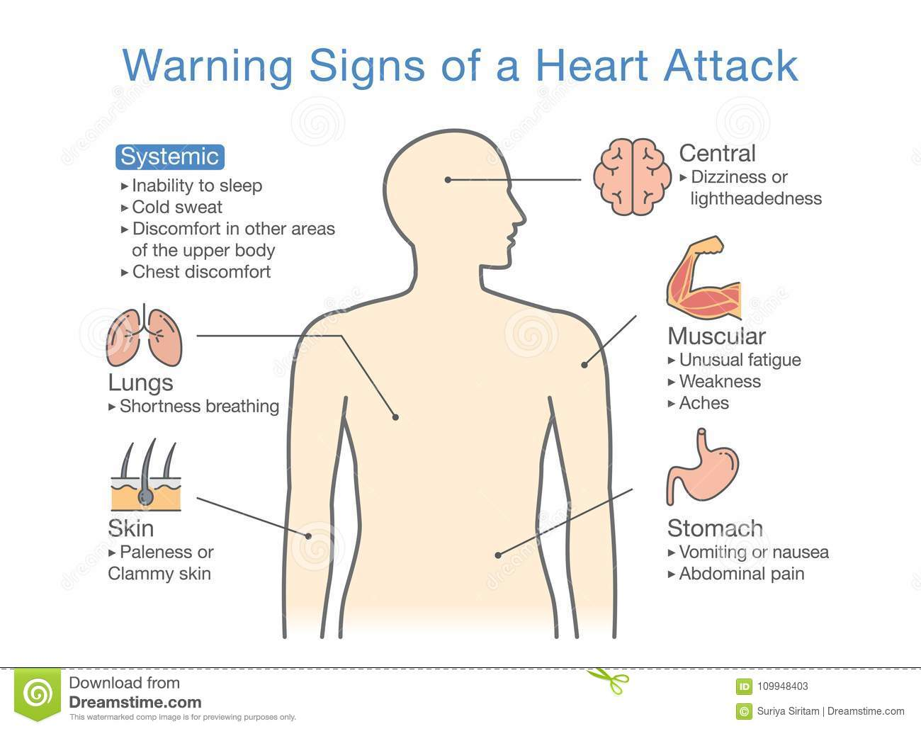Diagram about warning signs of a heart attack stock vector download diagram about warning signs of a heart attack stock vector illustration of body ccuart Image collections