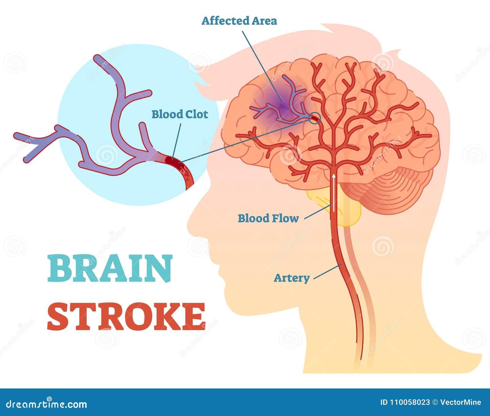 Diagrama anatômico da ilustração do vetor de Brain Stroke, esquema