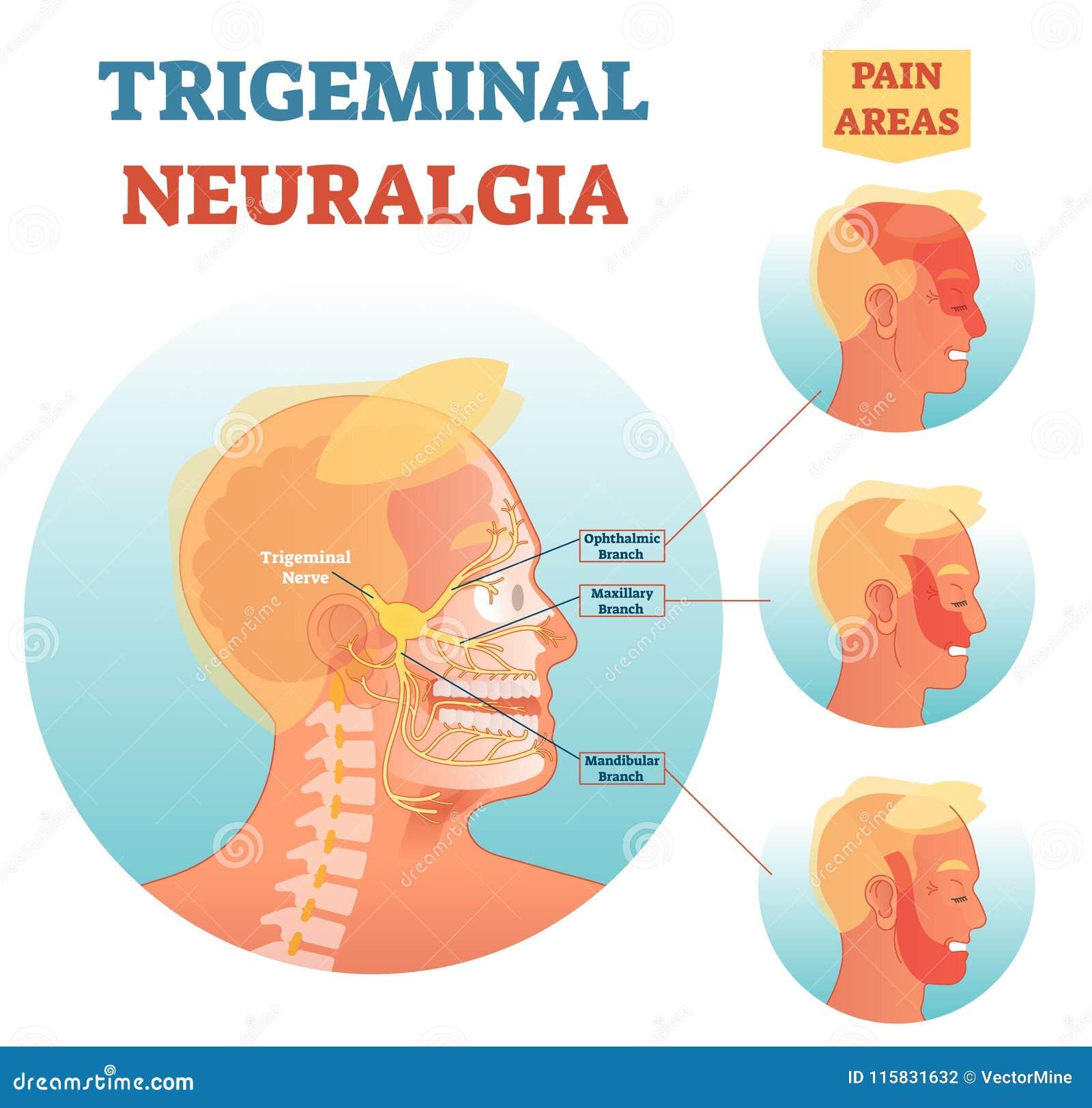 Diagrama de seção transversal médico da ilustração do vetor da anatomia da nevralgia de Trigeminal com áreas faciais da rede neur