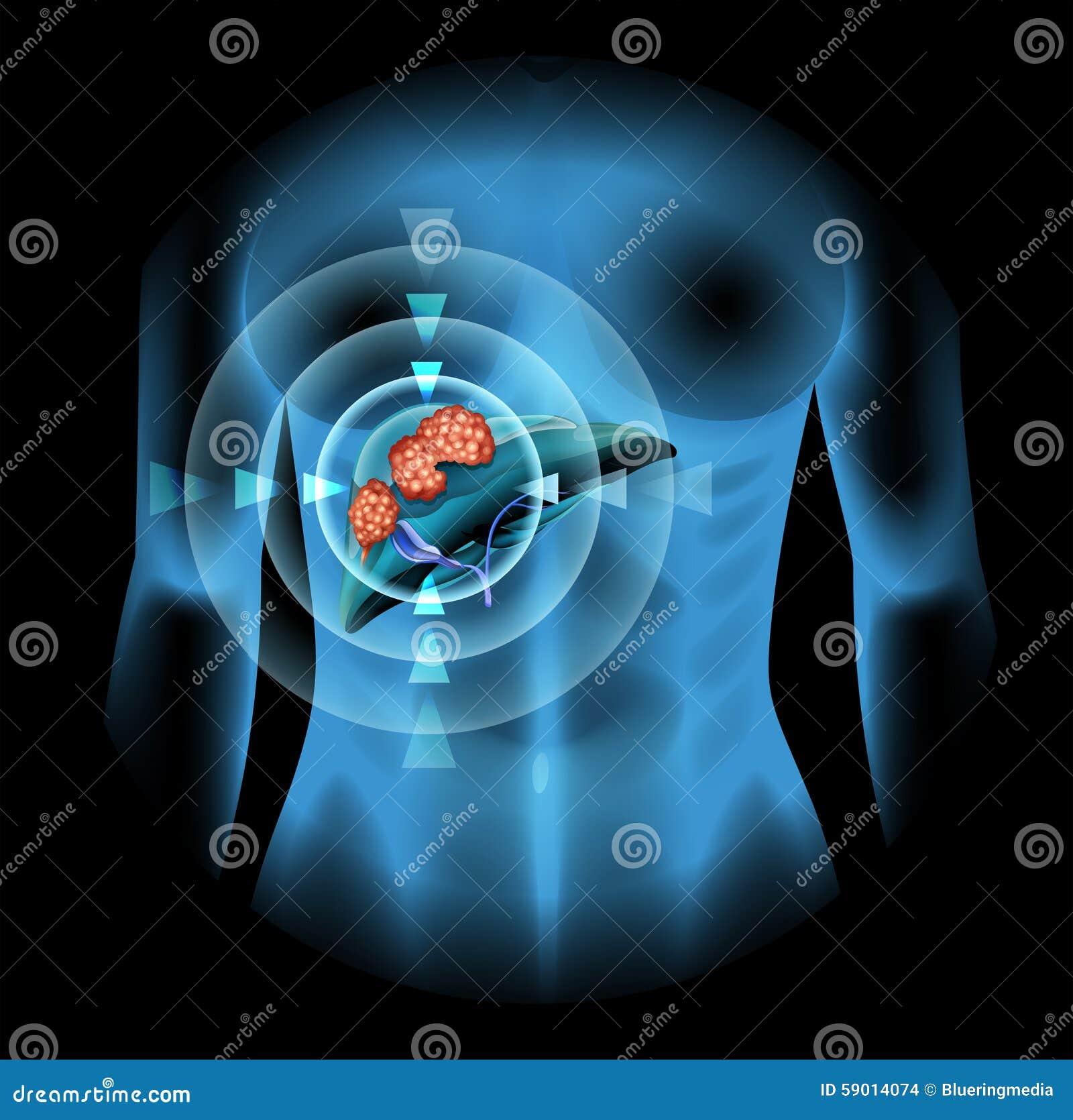Diagrama Del Cáncer De Hígado En Ser Humano Stock de ilustración ...