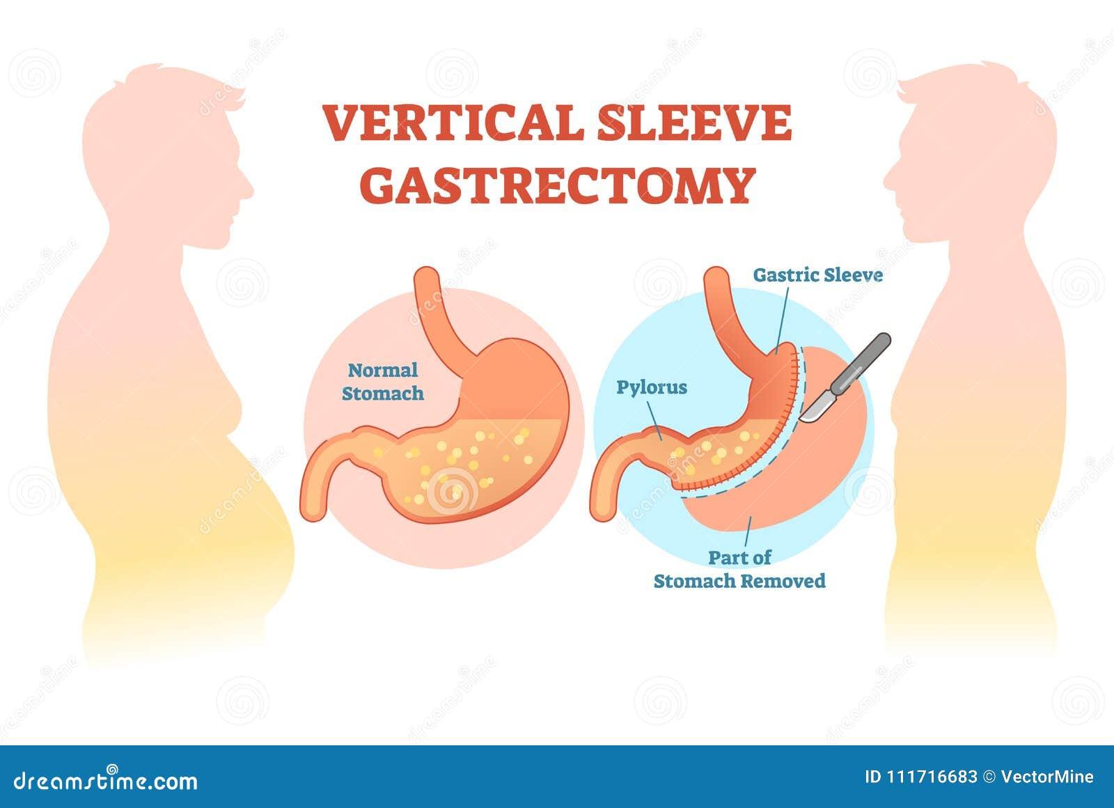 Diagrama médico da ilustração do vetor da incisão do estômago vertical da luva com corte cirúrgico do estômago