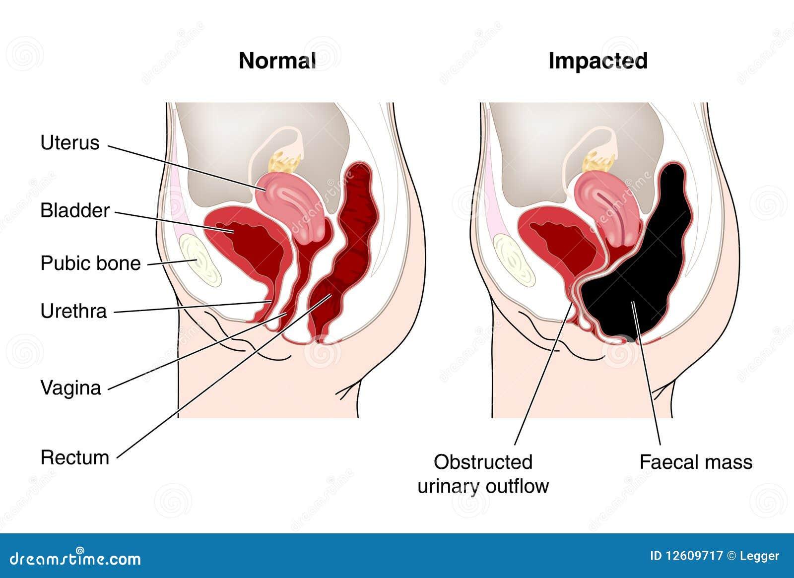 Diagramm Des Verstopft Darms Vektor Abbildung - Illustration von ...