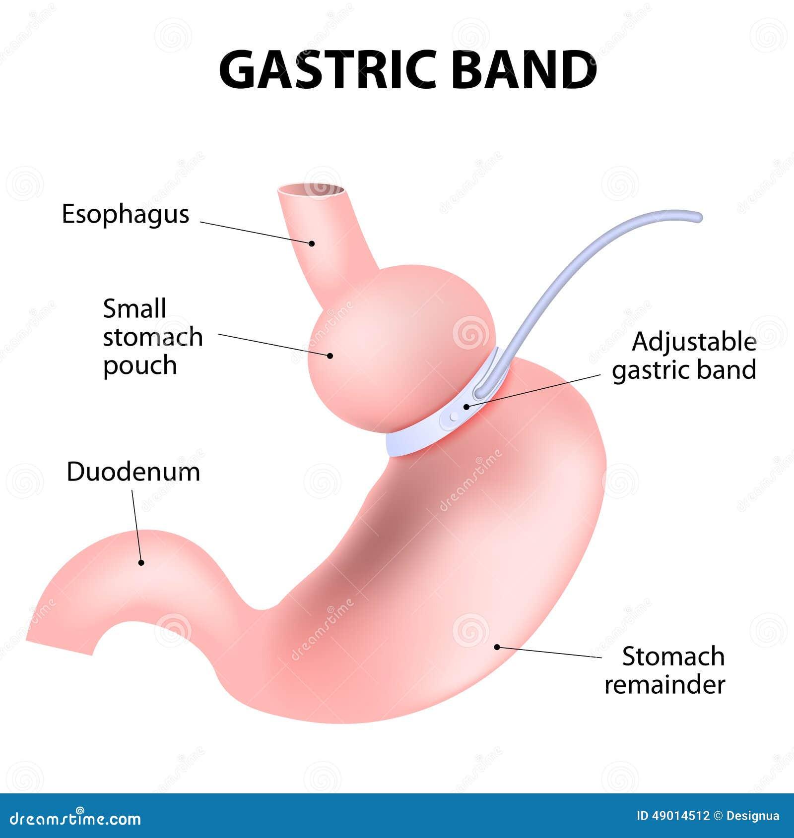 plan de régime de bande de recouvrement gastrique