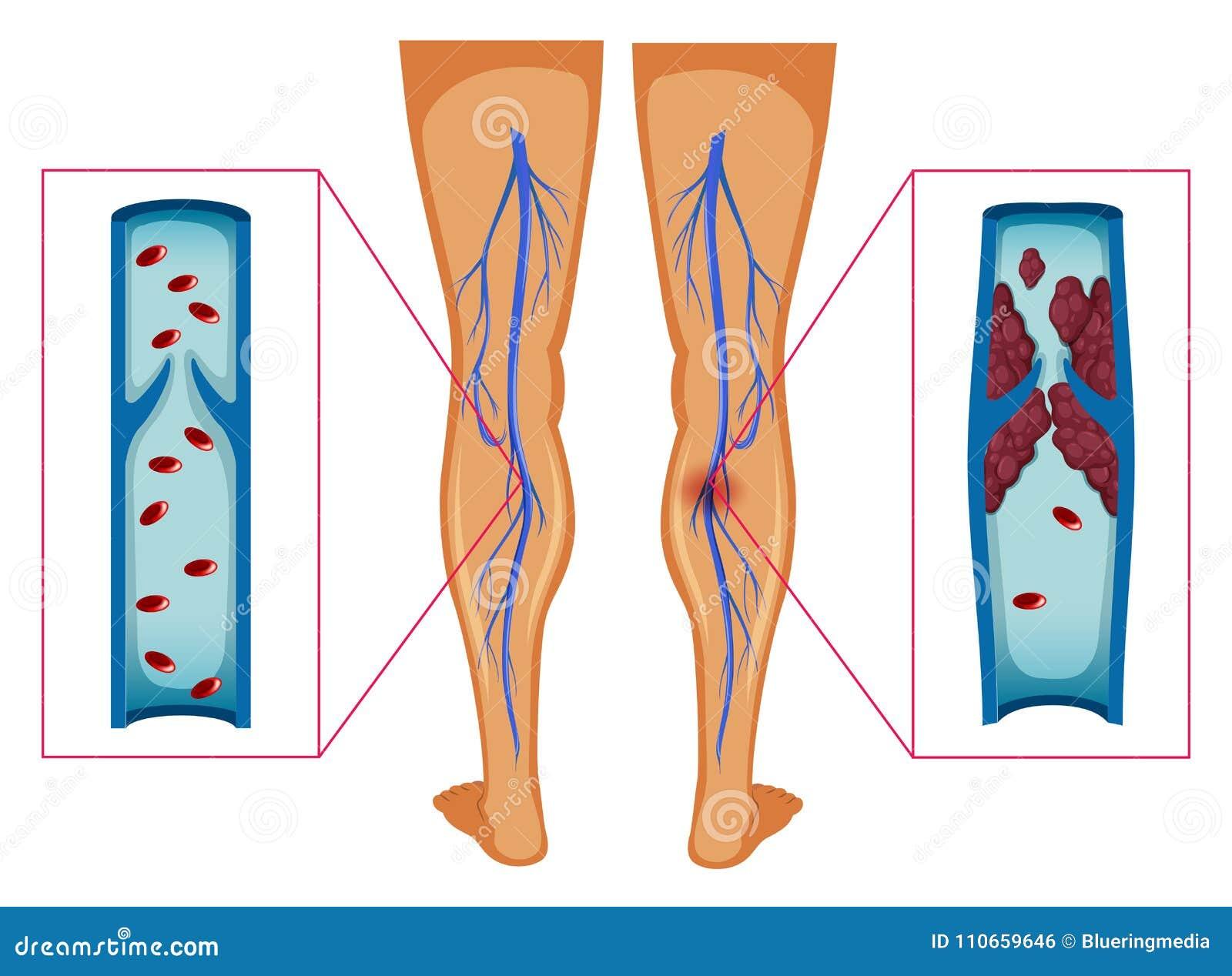 Diagramme montrant le caillot sanguin dans des jambes humaines