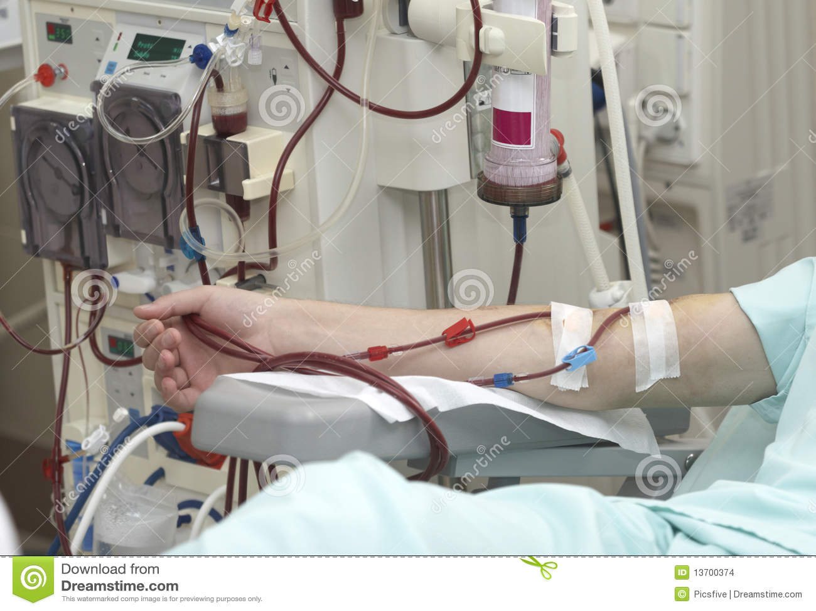 Dialysegesundheitspflege-Medizinniere