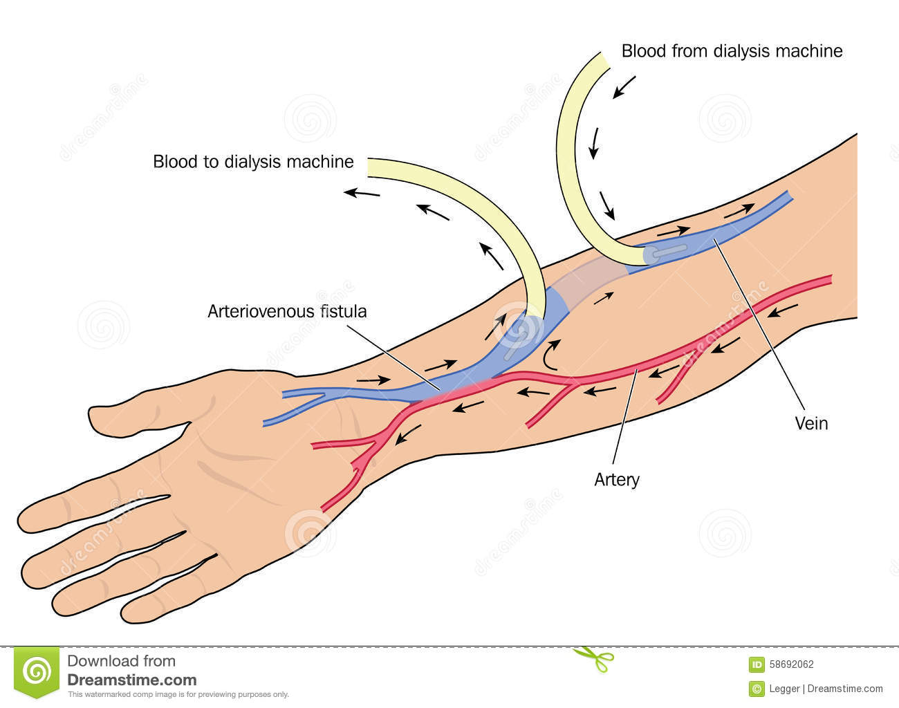 Clip Art of a Dialysis Fistula