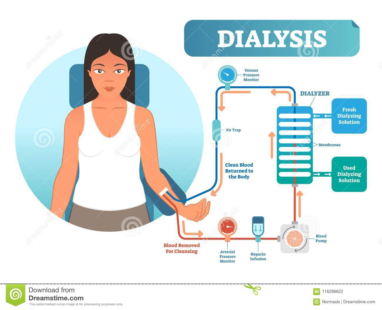 Dialysis Cartoons  Illustrations  U0026 Vector Stock Images