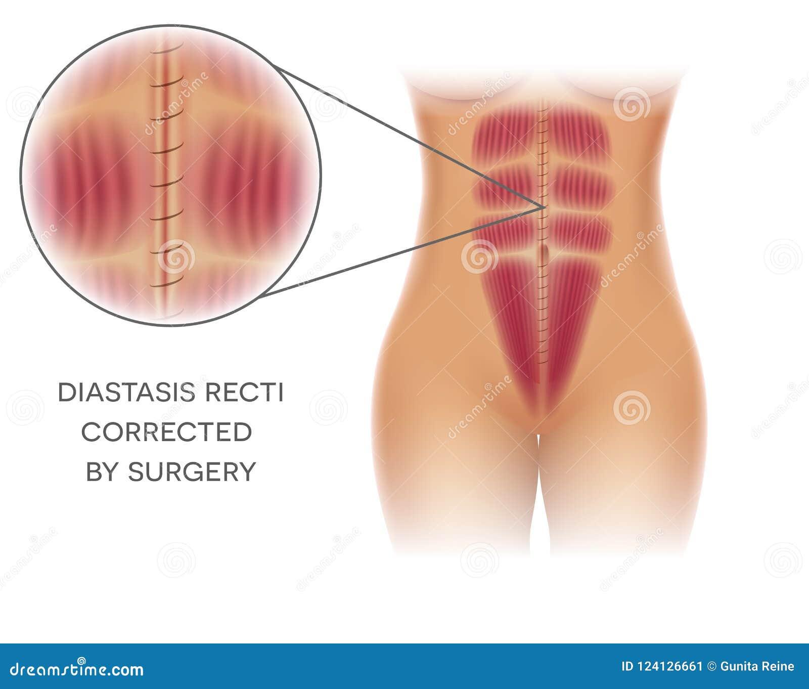 Diastasis Recti Repair Stock Vector Illustration Of Anatomy 124126661