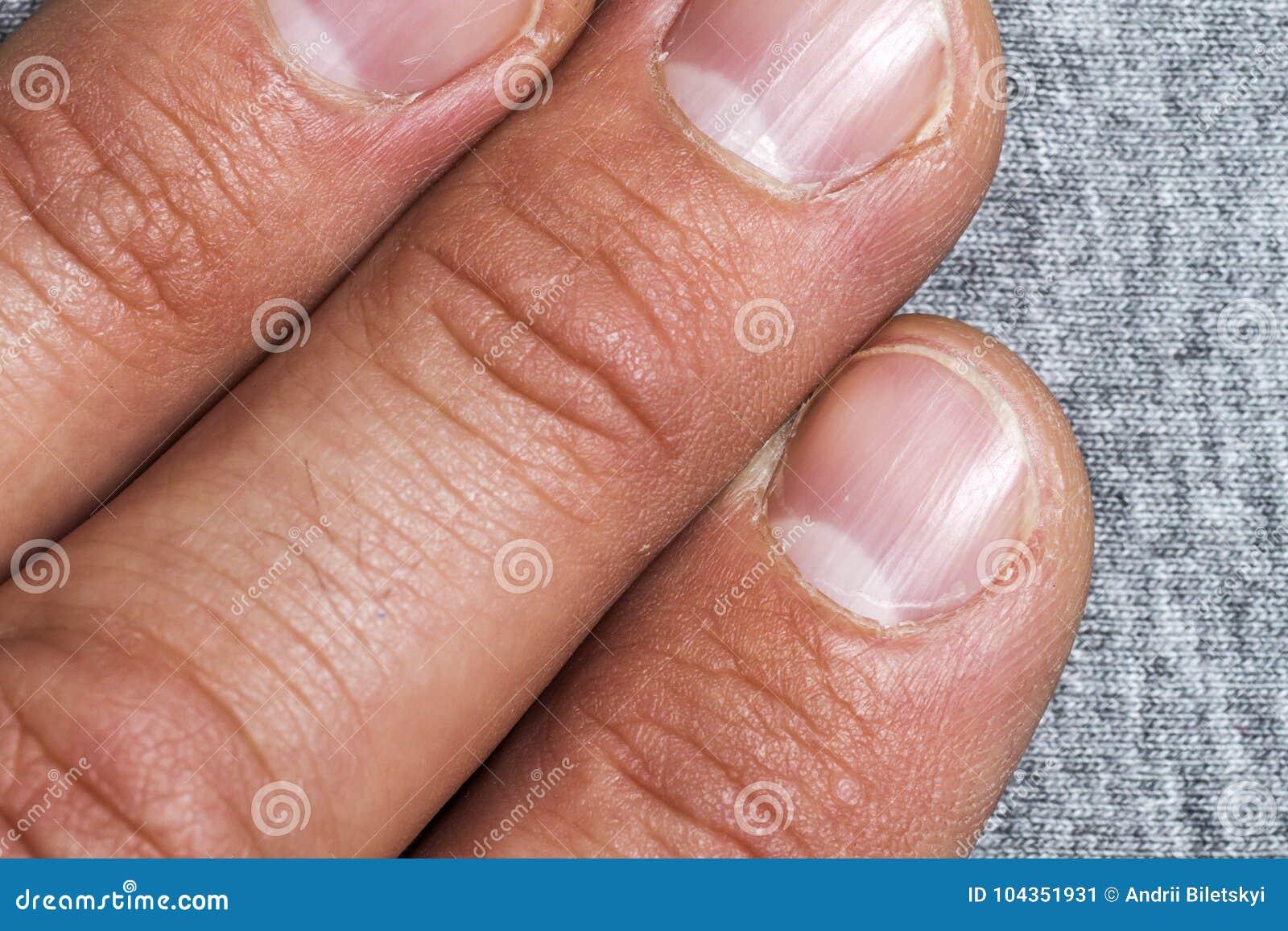 fingernägel männer