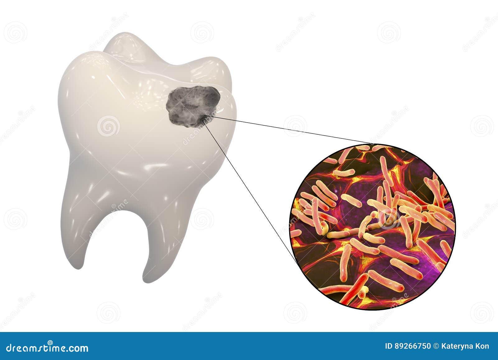 Diente con la carie dental