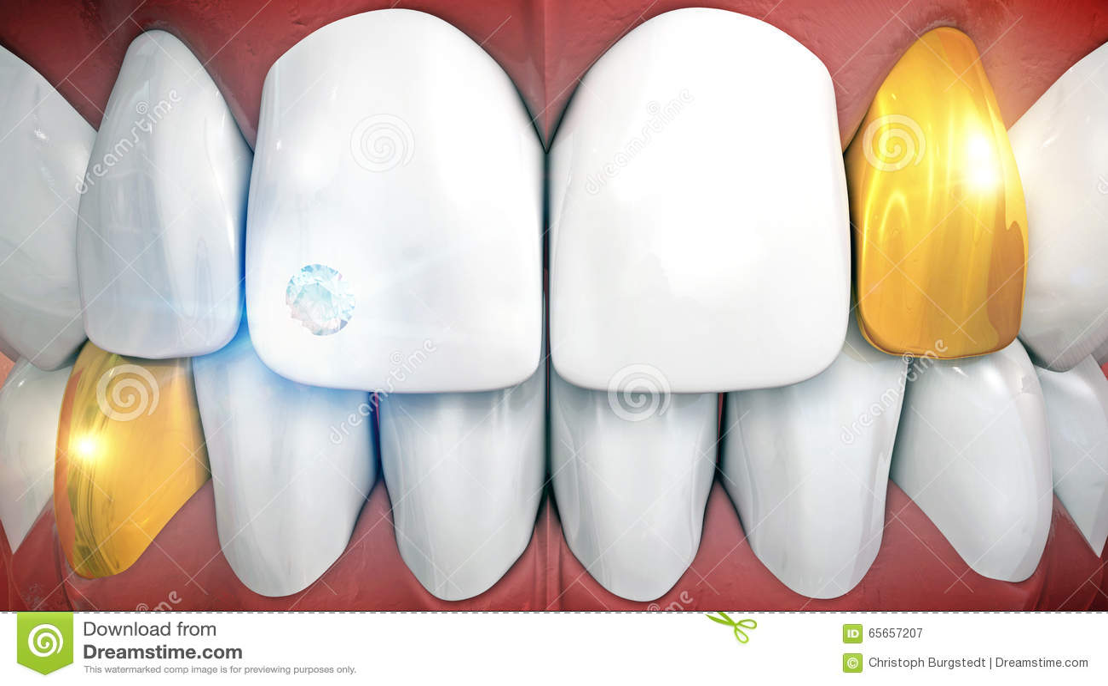 Dientes anteriores con el implante y los colmillos de la piedra preciosa en oro