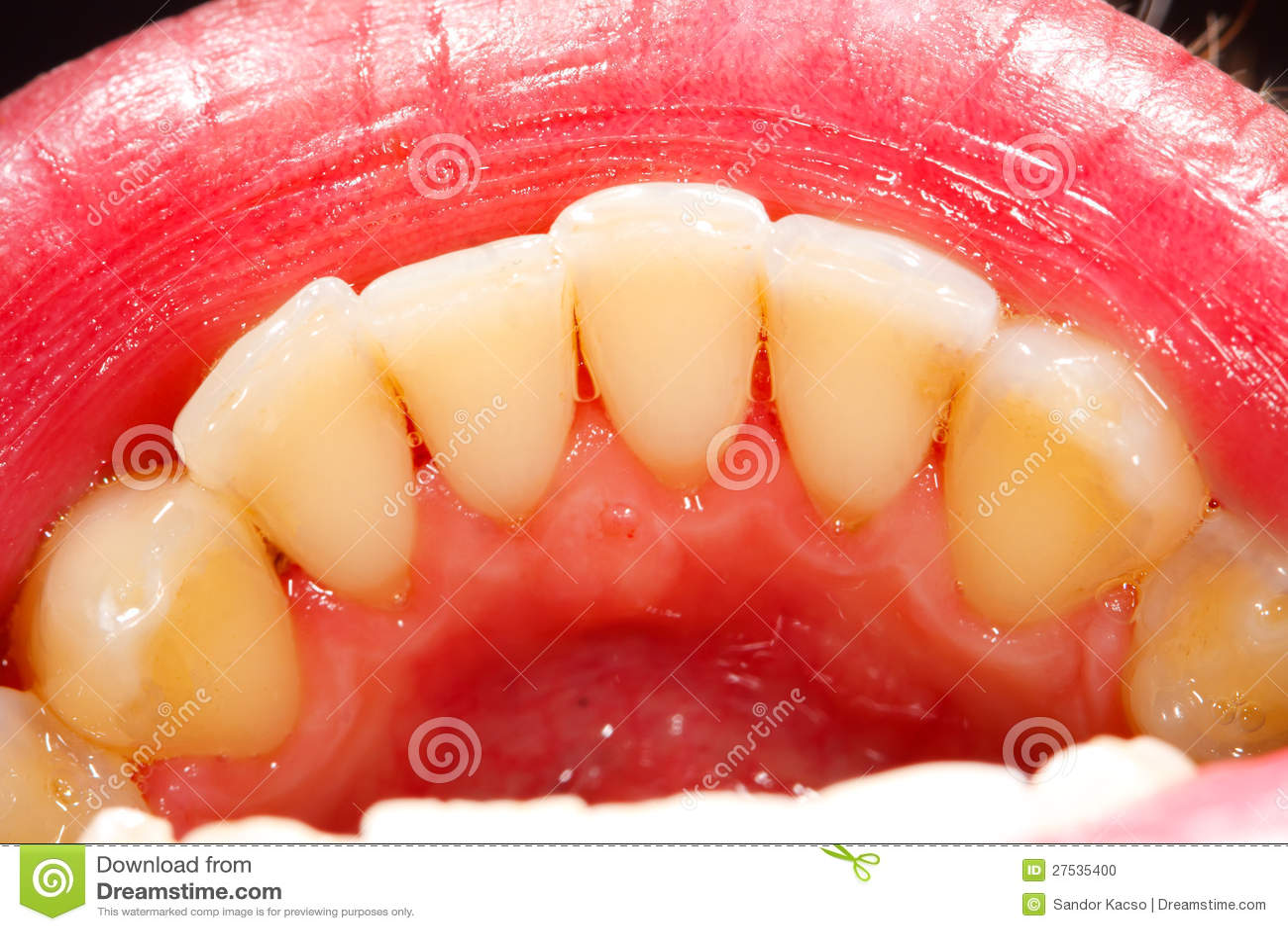 Dientes humanos foto de archivo. Imagen de dientes, primer - 27535400