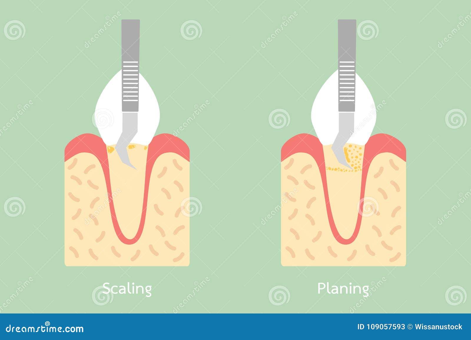 Dientes Que Escalan - Retiro De La Placa Dental, Estructura De La ...