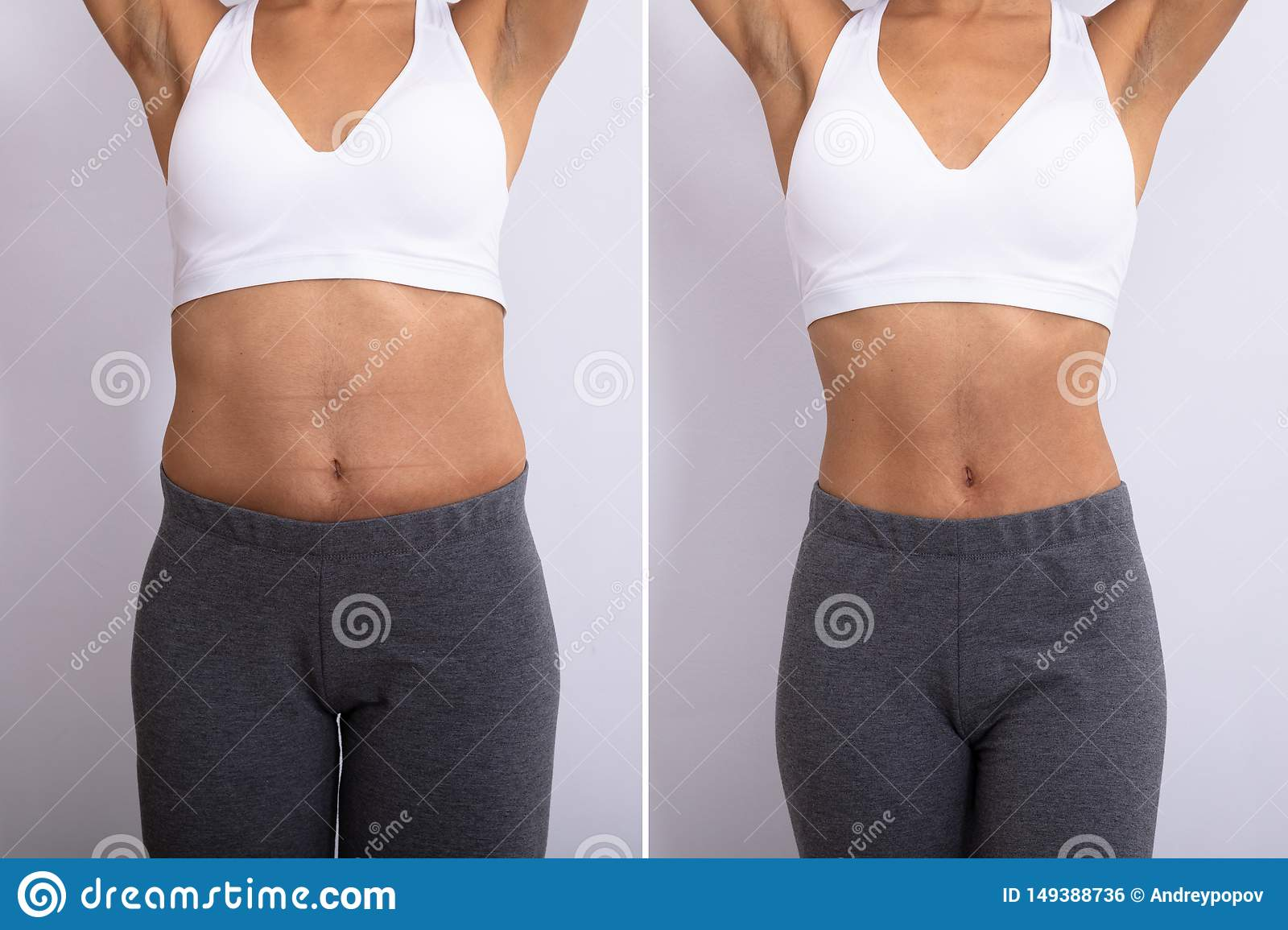 Before And After Diet Concept