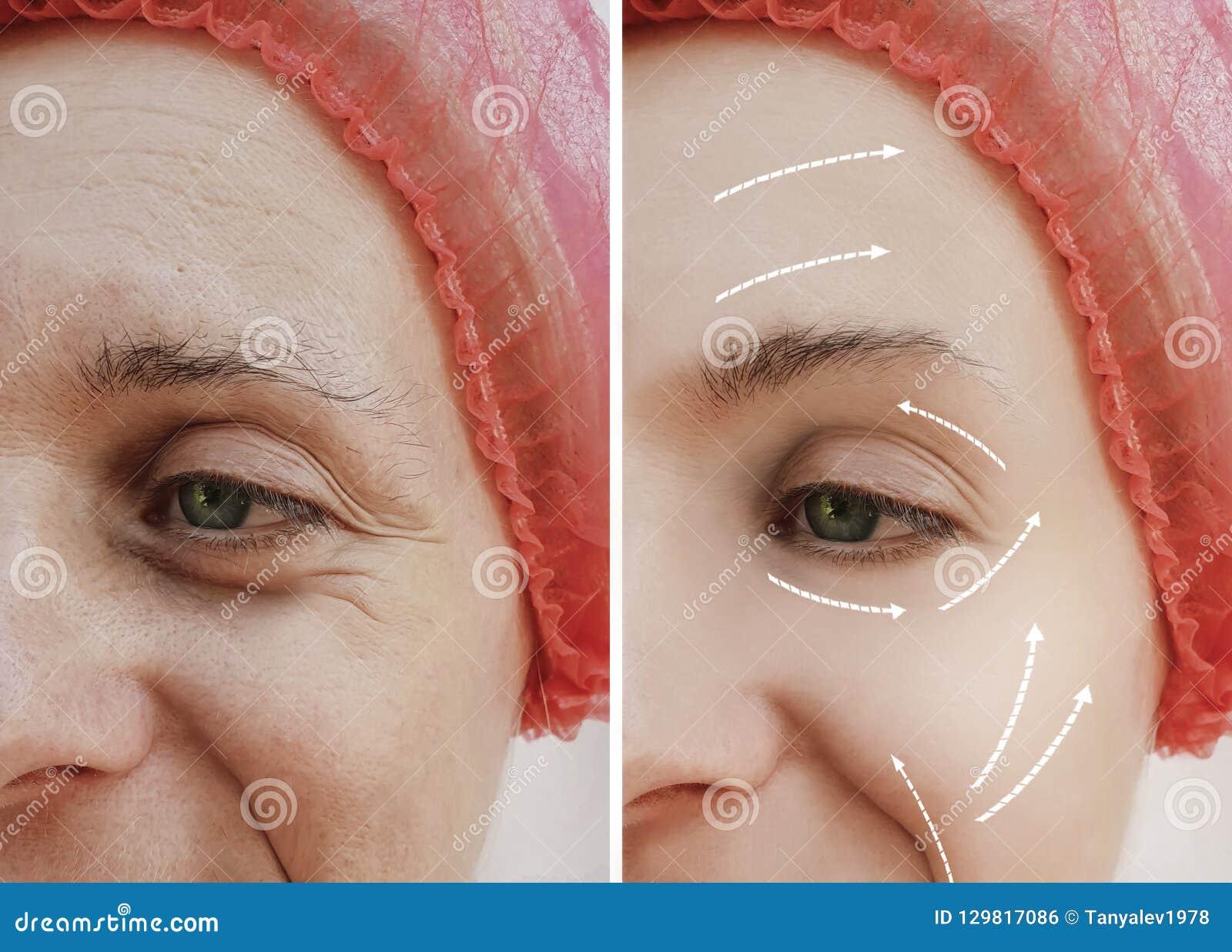 Diferença paciente madura antes e depois dos procedimentos cosméticos, seta do tratamento facial adulto fêmea dos enrugamentos