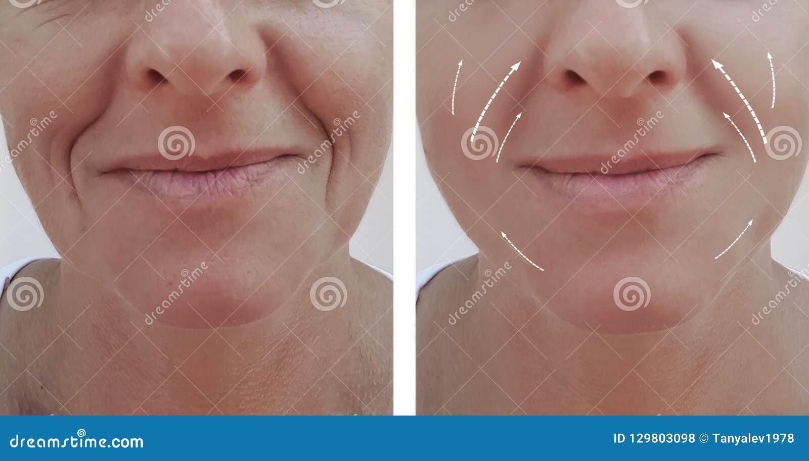 Diferencia paciente antes y después de procedimientos, flecha de las arrugas del retiro de la dermatología del contraste del llen