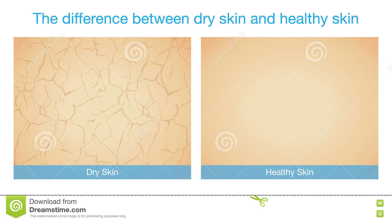 The difference between dry skin and healthy skin stock vector download comp ccuart