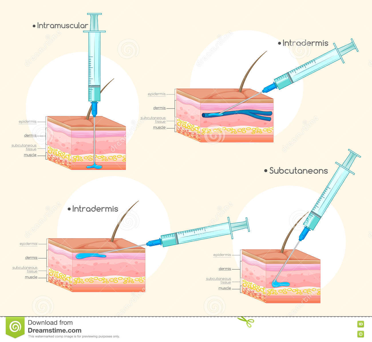 Different Types Of Injections Stock Vector - Illustration