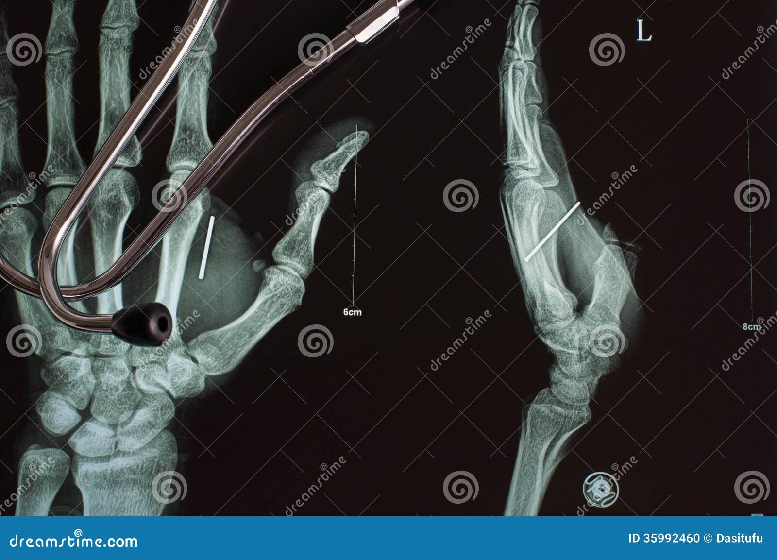 Digital röntgenfotografering och stetoskop