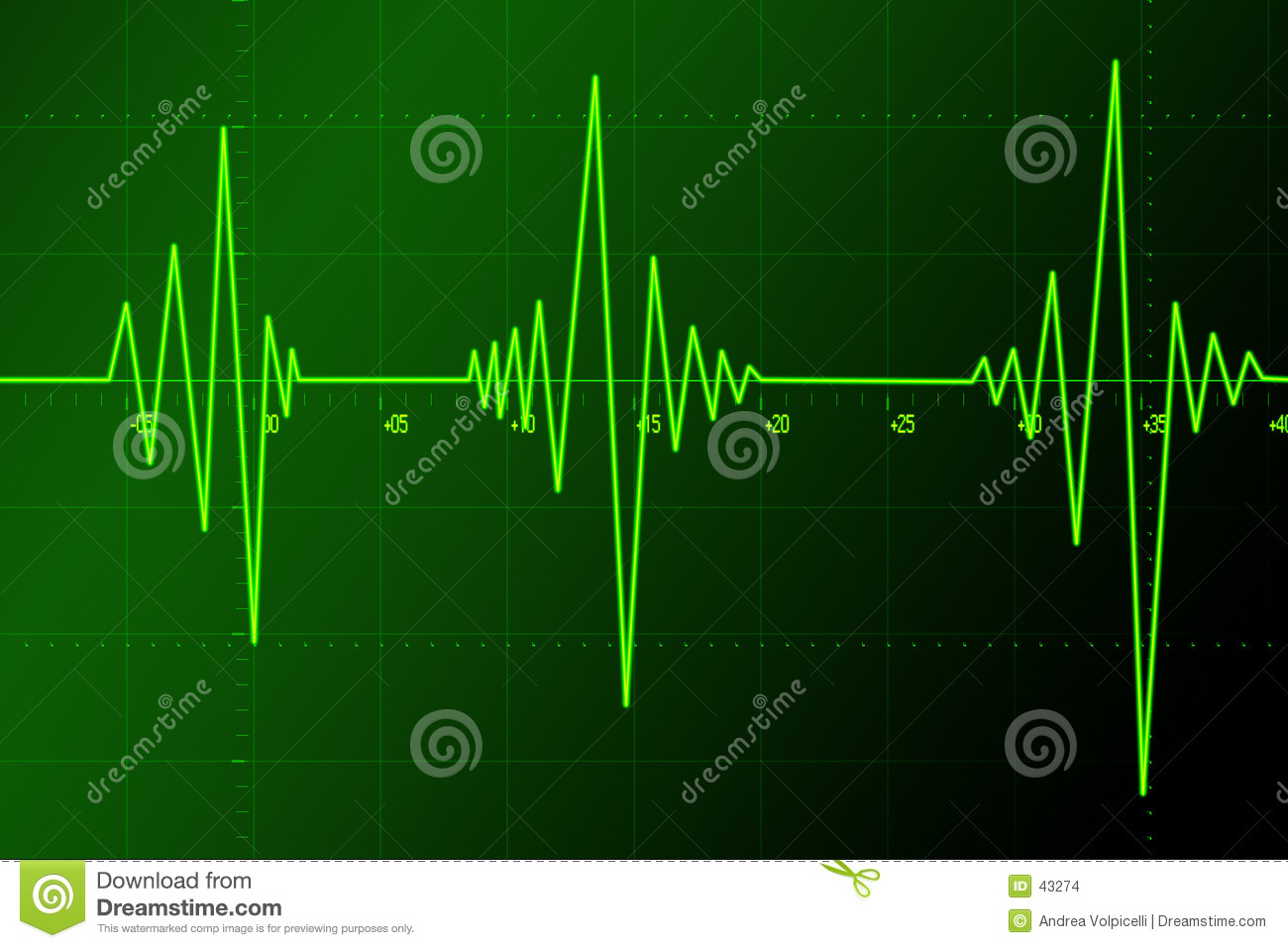 sound doppler Doppler effect the doppler effect causes the pitch of a sound source to appear to rise or fall due to motion of the source and/or listener relative to each other you have probably heard the pitch of a horn drop lower as it passes by (eg, from a moving train.